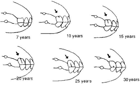 Diagram of horses teeth at different ages.