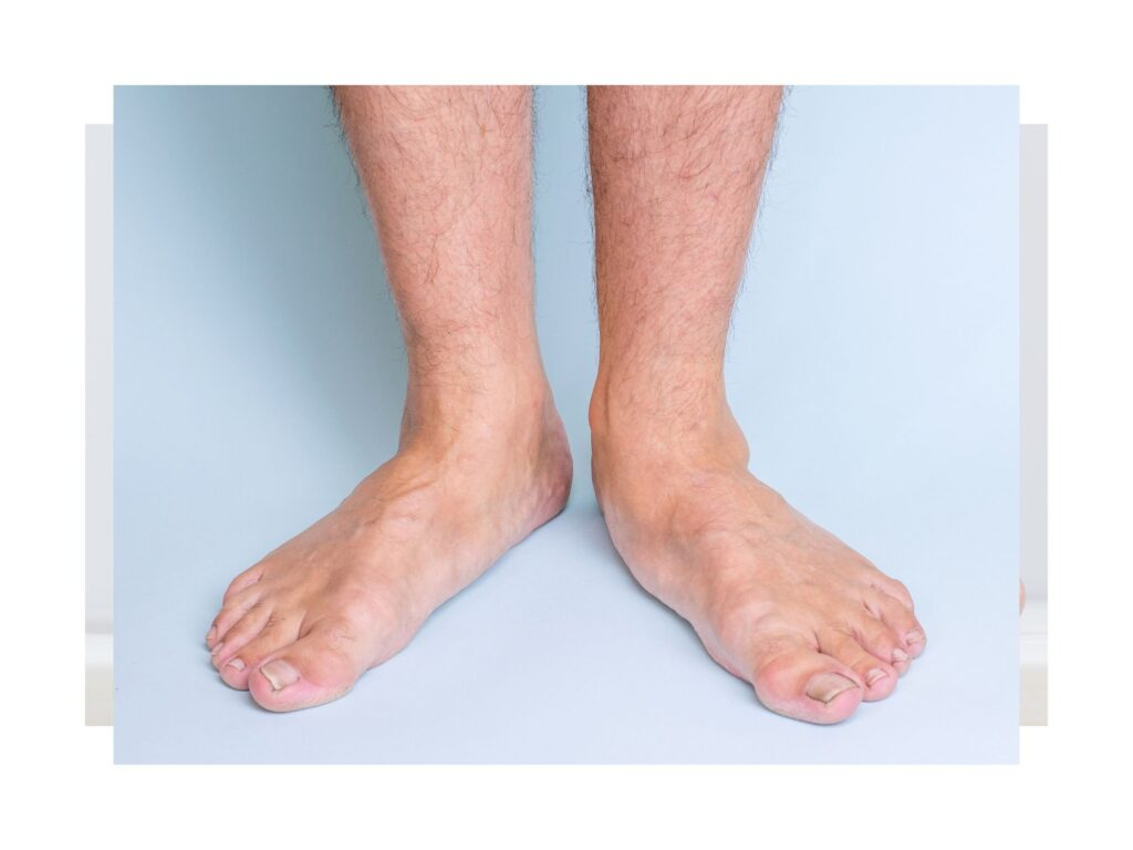 Picture of a man with flat feet.